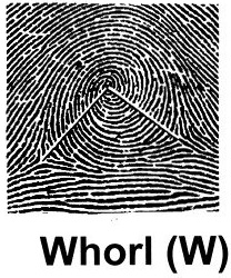 Whorl pattern